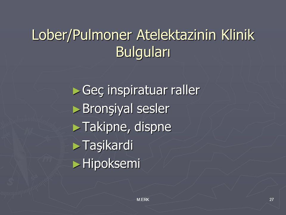 Lober/Pulmoner Atelektazinin Klinik Bulguları