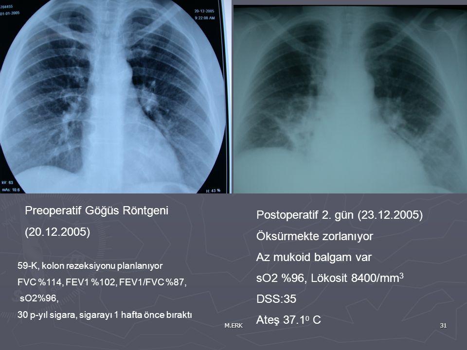 Preoperatif Göğüs Röntgeni (20.12.2005)