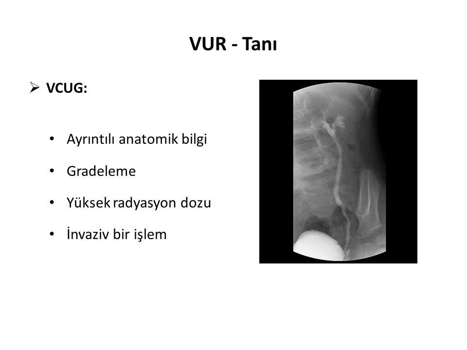 VUR - Tanı VCUG: Ayrıntılı anatomik bilgi Gradeleme