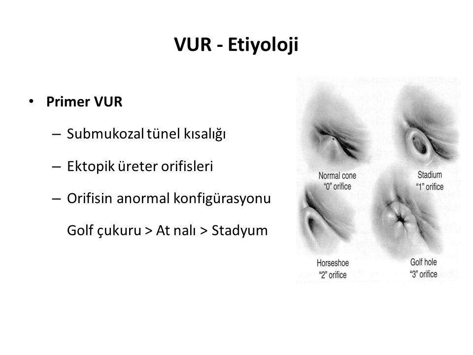VUR - Etiyoloji Primer VUR Submukozal tünel kısalığı