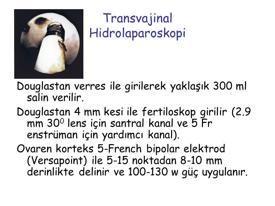Transvajinal Hidrolaparoskopi