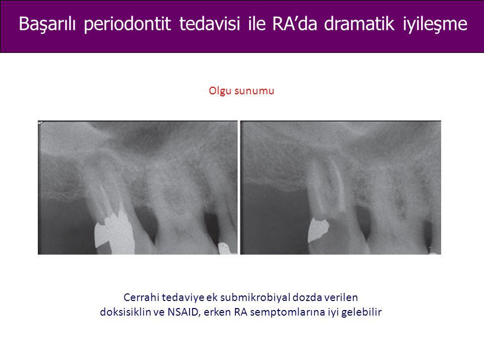 Başarılı periodontit tedavisi ile RA'da dramatik iyileşme