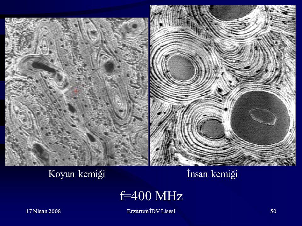 Koyun kemiği İnsan kemiği f=400 MHz 17 Nisan 2008 Erzurum İDV Lisesi