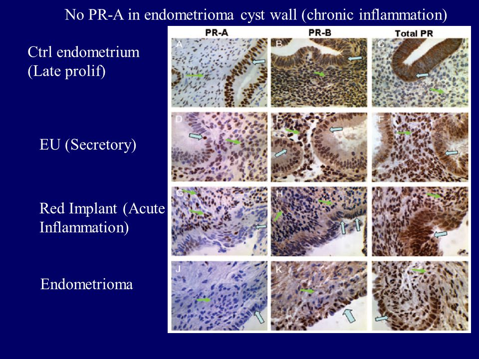 No PR-A in endometrioma cyst wall (chronic inflammation)