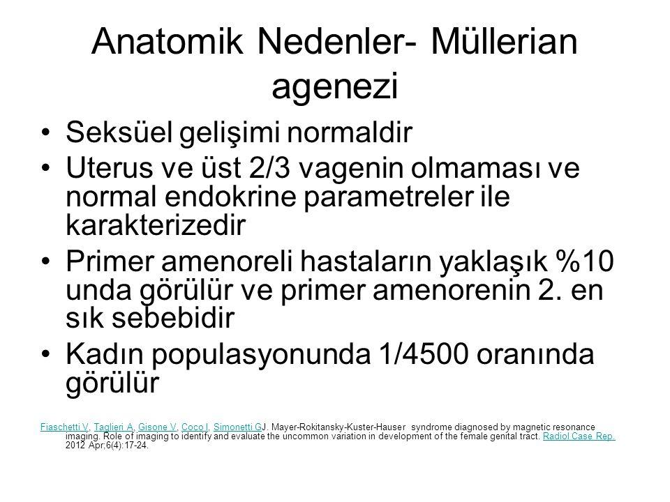 Anatomik Nedenler- Müllerian agenezi
