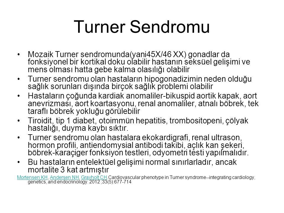 Turner Sendromu