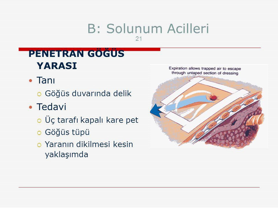 B: Solunum Acilleri PENETRAN GÖĞÜS YARASI Tanı Tedavi