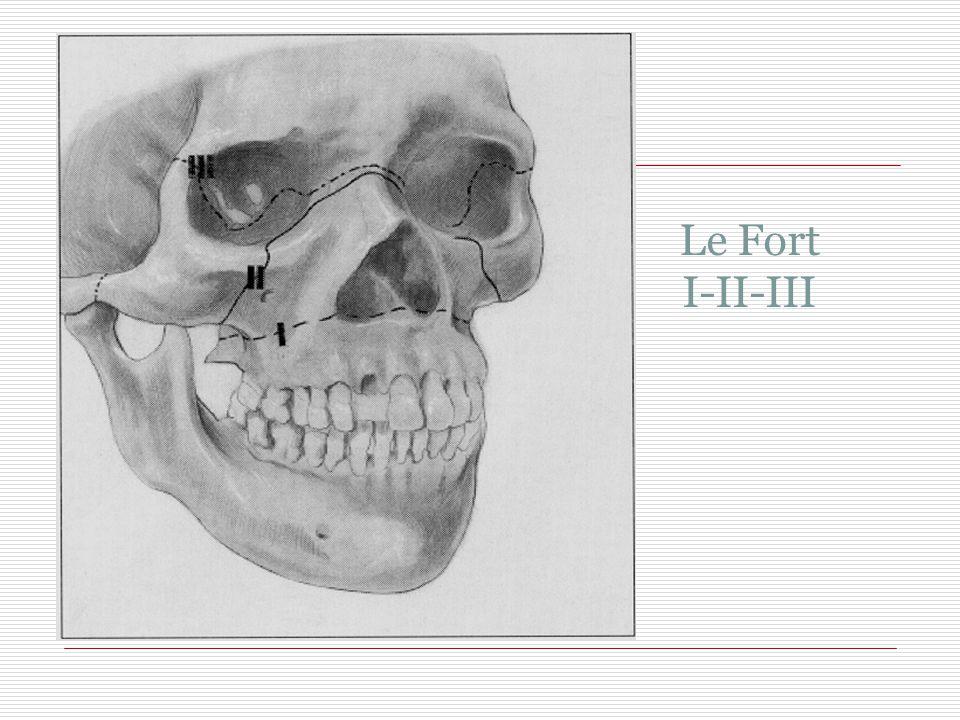 Le Fort I-II-III 43 43