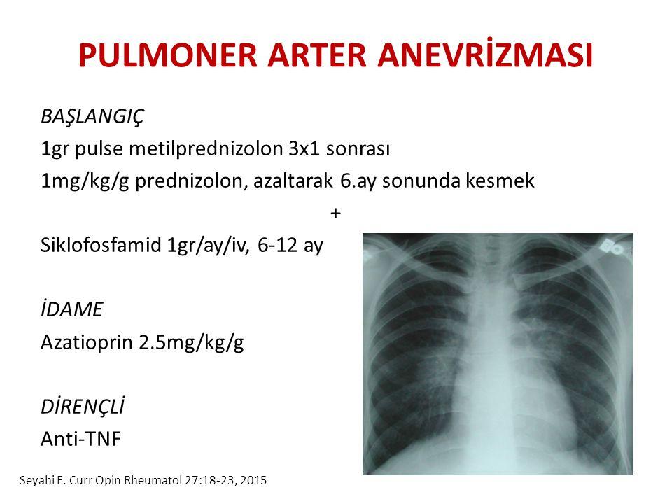 PULMONER ARTER ANEVRİZMASI