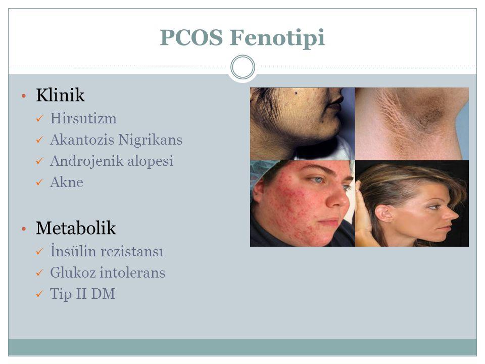 PCOS Fenotipi Klinik Metabolik Hirsutizm Akantozis Nigrikans