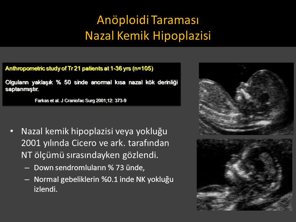 Anöploidi Taraması Nazal Kemik Hipoplazisi