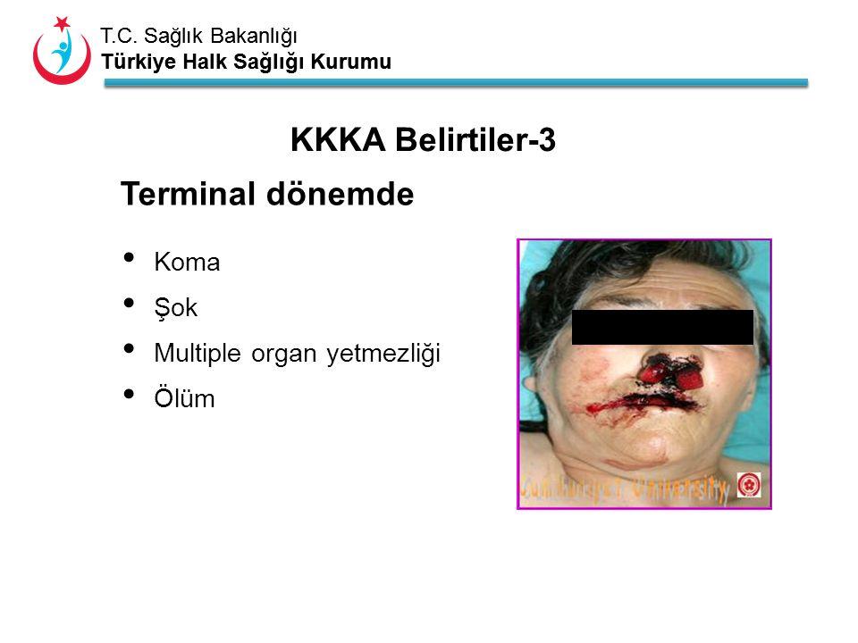 KKKA Belirtiler-3 Terminal dönemde