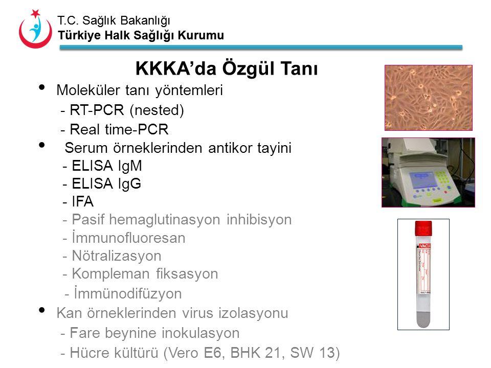KKKA'da Özgül Tanı Moleküler tanı yöntemleri - RT-PCR (nested)