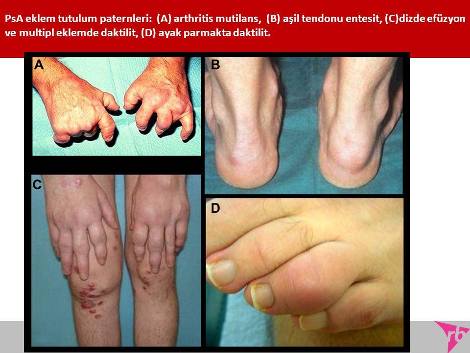 PsA eklem tutulum paternleri: (A) arthritis mutilans, (B) aşil tendonu entesit, (C)dizde efüzyon ve multipl eklemde daktilit, (D) ayak parmakta daktilit.