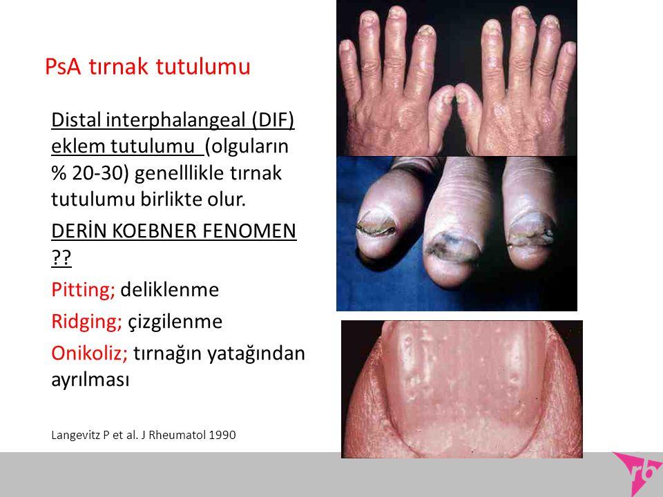 PsA tırnak tutulumu Distal interphalangeal (DIF) eklem tutulumu (olguların % 20-30) genelllikle tırnak tutulumu birlikte olur.