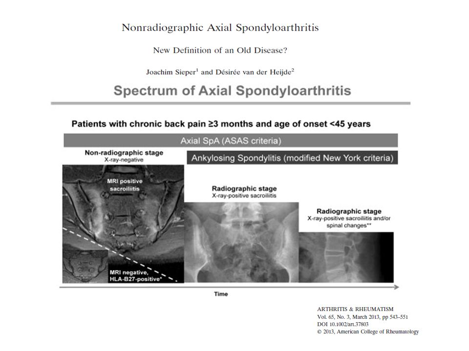Nonradiographic axial SpA is clinically a relevant subgroup of axial SpA. An increasing number of studies are now available that allow some estimation of the relative proportion of these patients in relation to AS as well as the progression rate from nonradiographic axial SpA to AS. Similarities and differences between the two subgroups have been described. While they are similar in their clinical presentation, level of clinical disease activity,and response to TNF blockade in patients with the same disease activity levels, they differ in their extent of structural damage (by definition), level of objective inflammation, as shown by the CRP values and MRI findings, and sex distribution. Nonetheless, because most of the data presented here are based on crosssectional investigations or short-term followup investigations