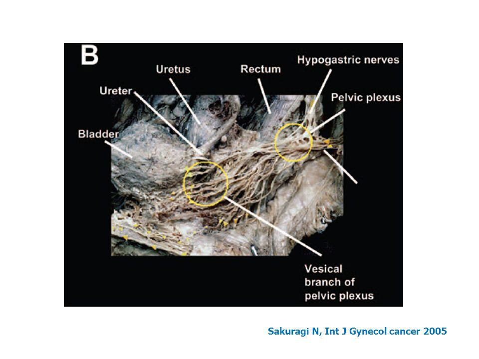 Sakuragi N, Int J Gynecol cancer 2005