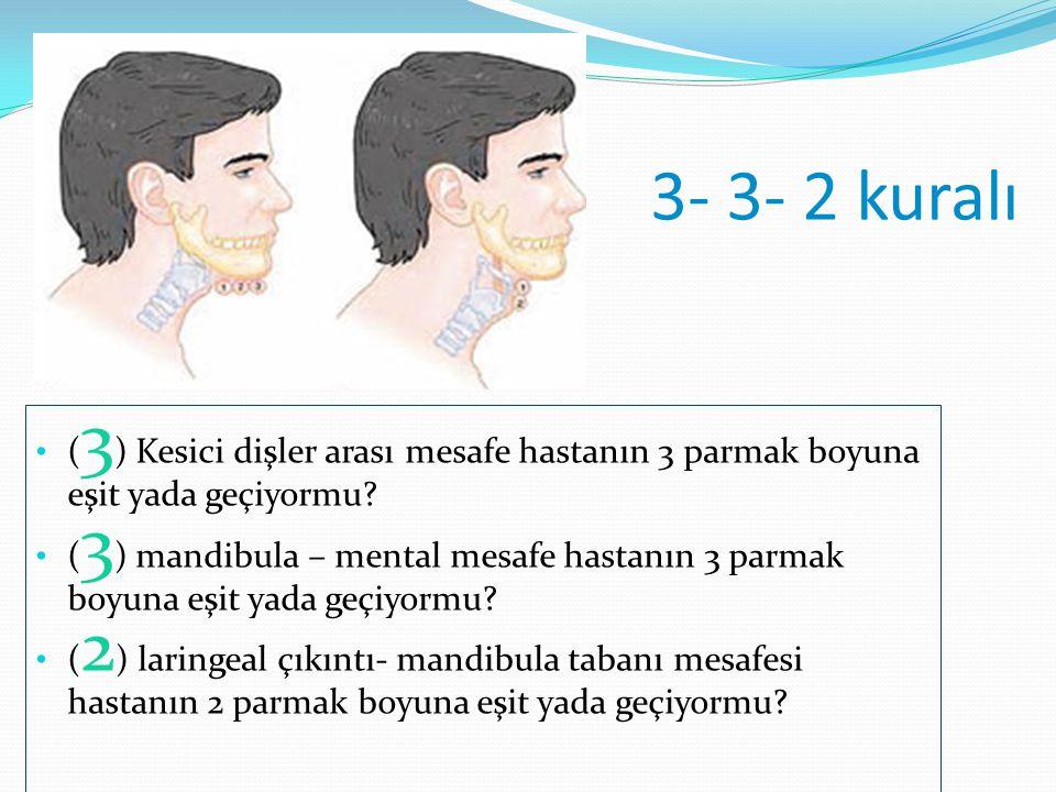 3- 3- 2 kuralı (3) Kesici dişler arası mesafe hastanın 3 parmak boyuna eşit yada geçiyormu