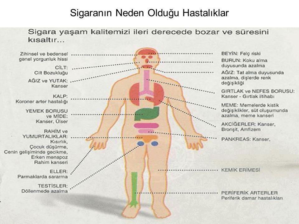 Sigaranın Neden Olduğu Hastalıklar