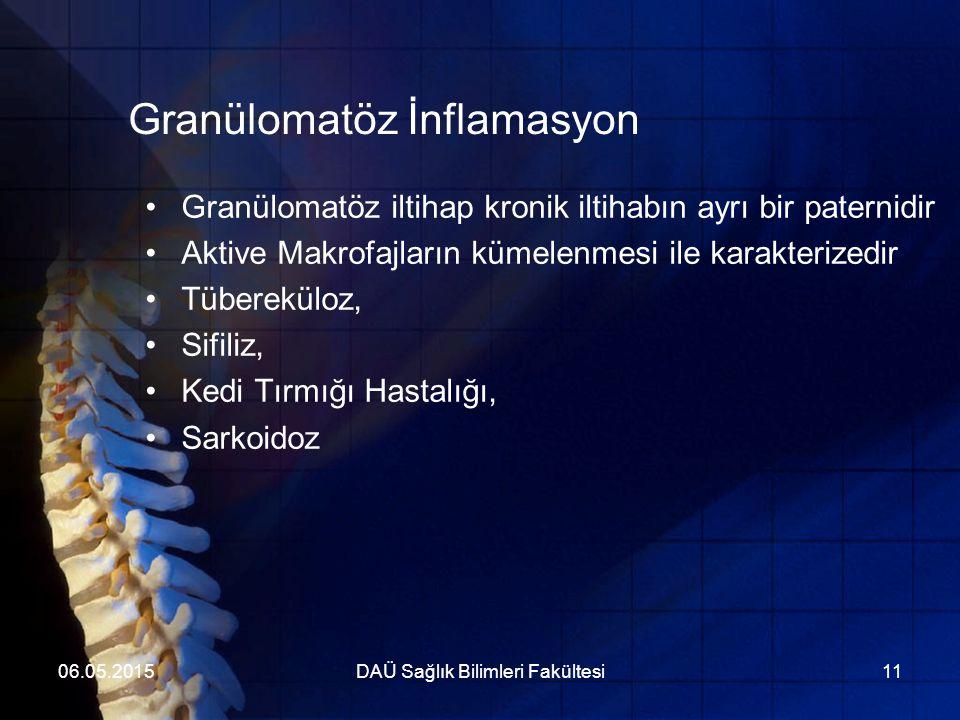 Granülomatöz İnflamasyon