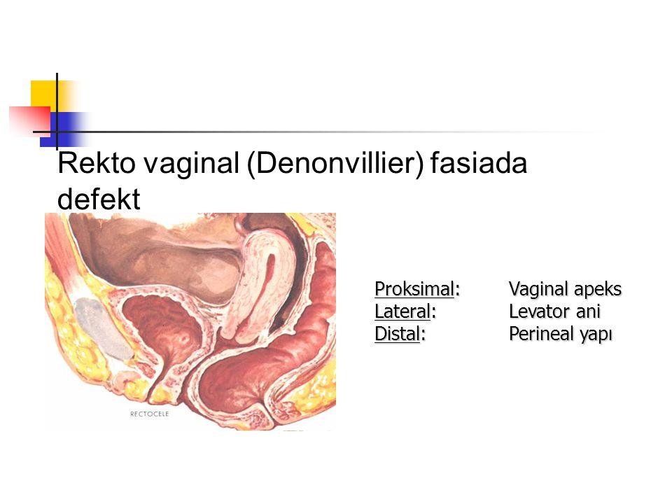 Rekto vaginal (Denonvillier) fasiada defekt