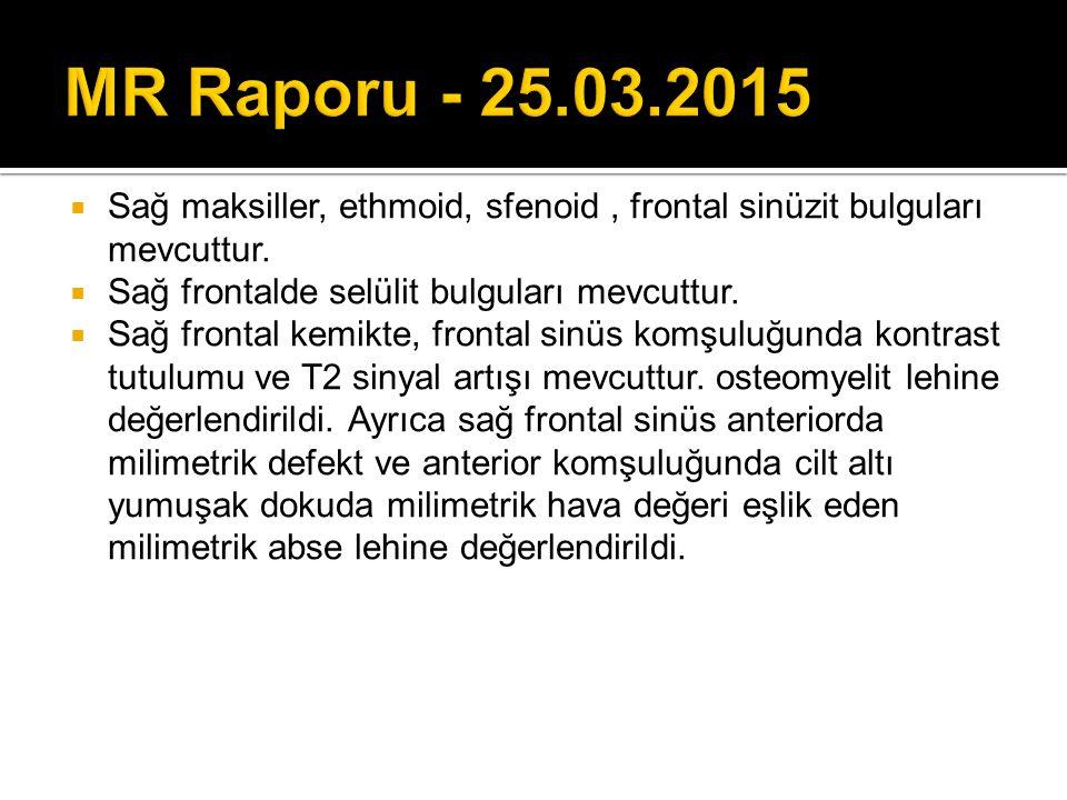 MR Raporu - 25.03.2015 Sağ maksiller, ethmoid, sfenoid , frontal sinüzit bulguları mevcuttur. Sağ frontalde selülit bulguları mevcuttur.
