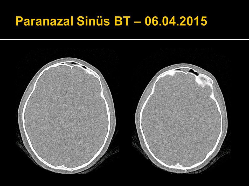 Paranazal Sinüs BT – 06.04.2015