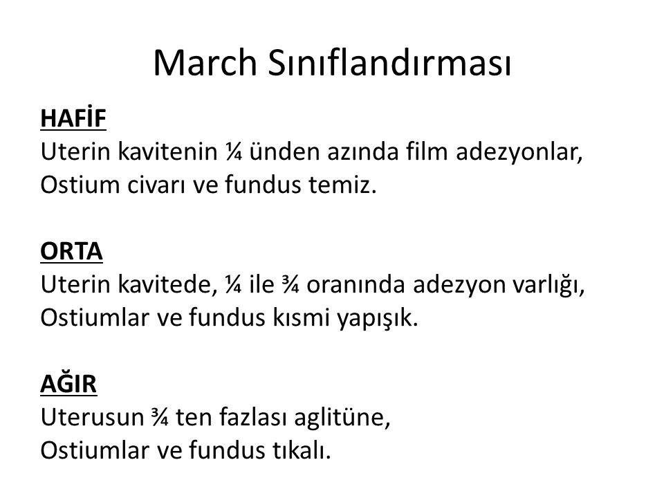 March Sınıflandırması