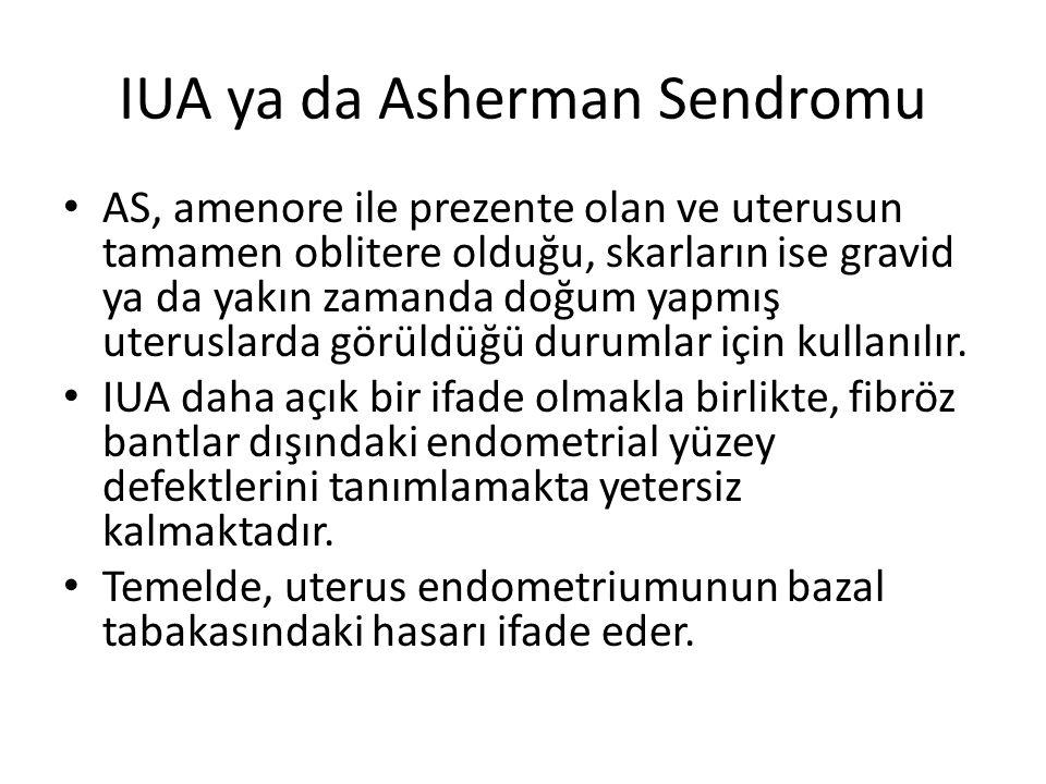 IUA ya da Asherman Sendromu