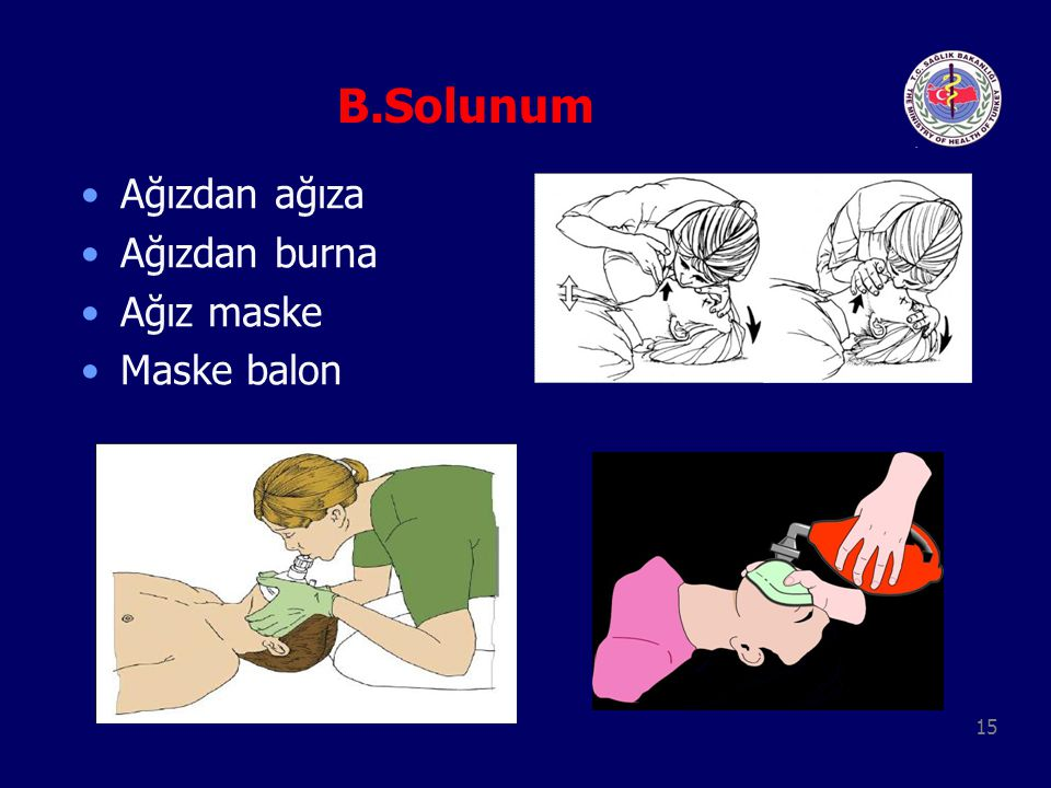 B.Solunum Ağızdan ağıza Ağızdan burna Ağız maske Maske balon