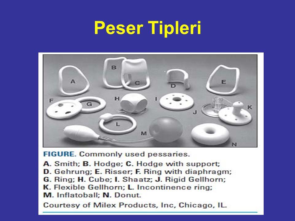 Peser Tipleri