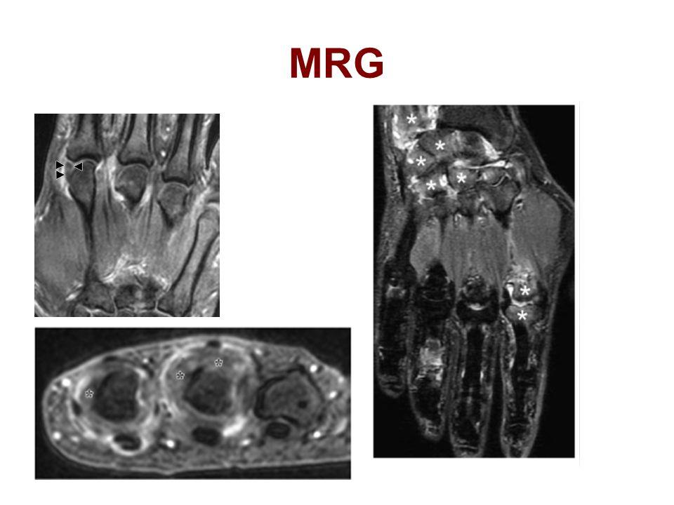 MRG 1.T1FsC Koranal kesit 2-3 mcf eklemde kalınlaşmış sinovya pannus dokusu ile uyumlu 2.T1FsC Aksiyel kesit pannus kalınlaşmış sinovya.