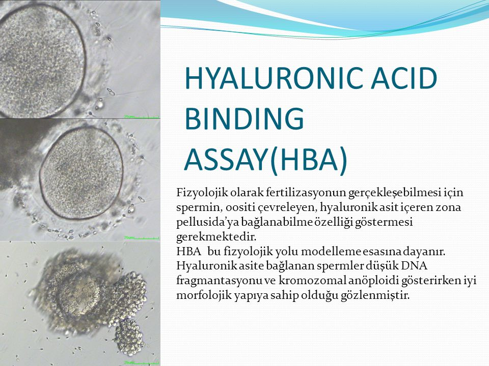HYALURONIC ACID BINDING ASSAY(HBA)