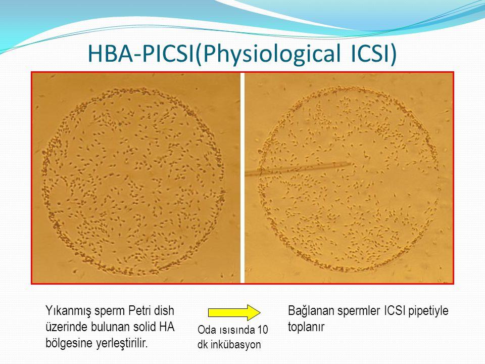 HBA-PICSI(Physiological ICSI)