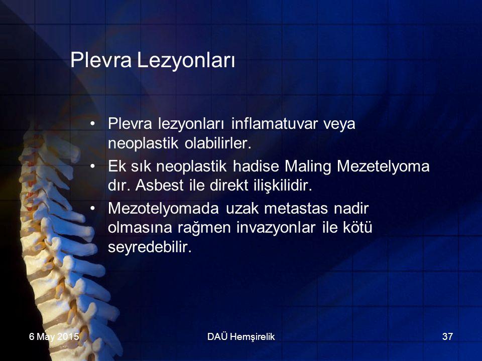 Plevra Lezyonları Plevra lezyonları inflamatuvar veya neoplastik olabilirler.