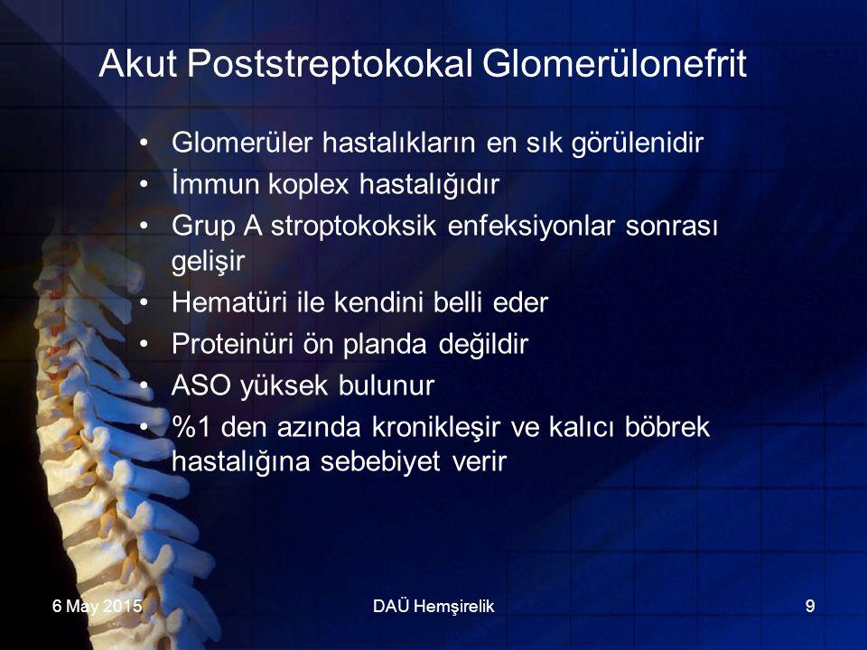 Akut Poststreptokokal Glomerülonefrit