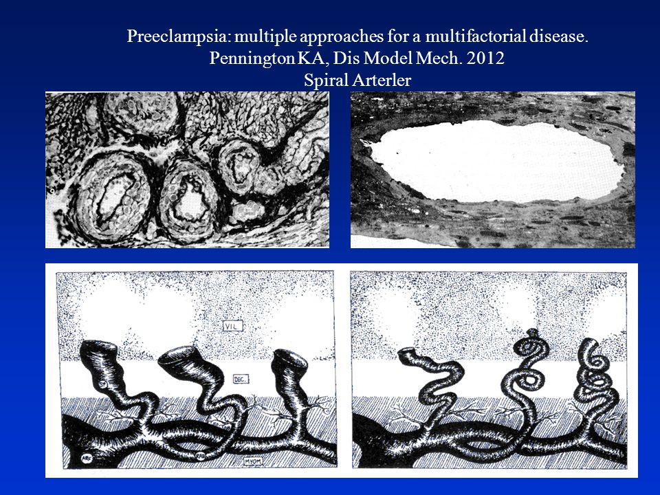 Preeclampsia: multiple approaches for a multifactorial disease.