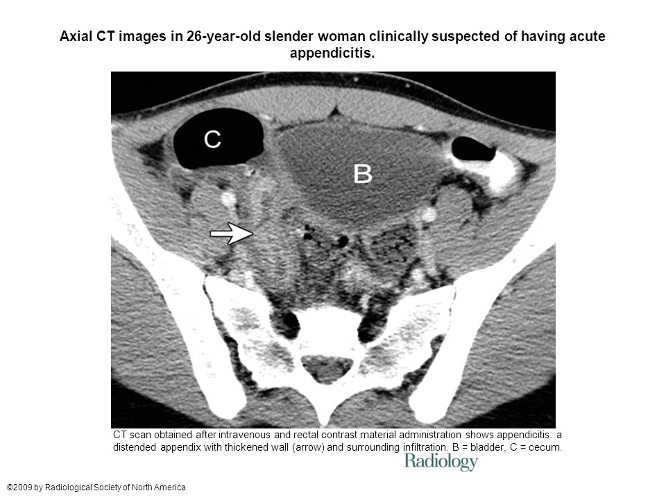 Axial CT images in 26-year-old slender woman clinically suspected of having acute appendicitis.