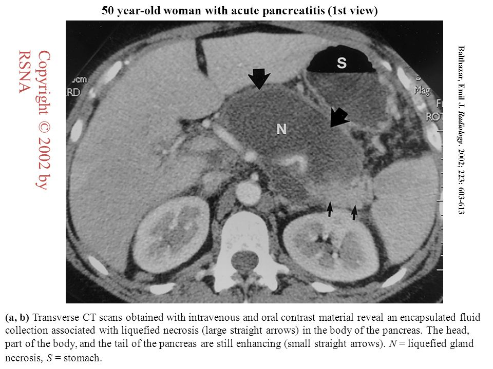50 year-old woman with acute pancreatitis (1st view)