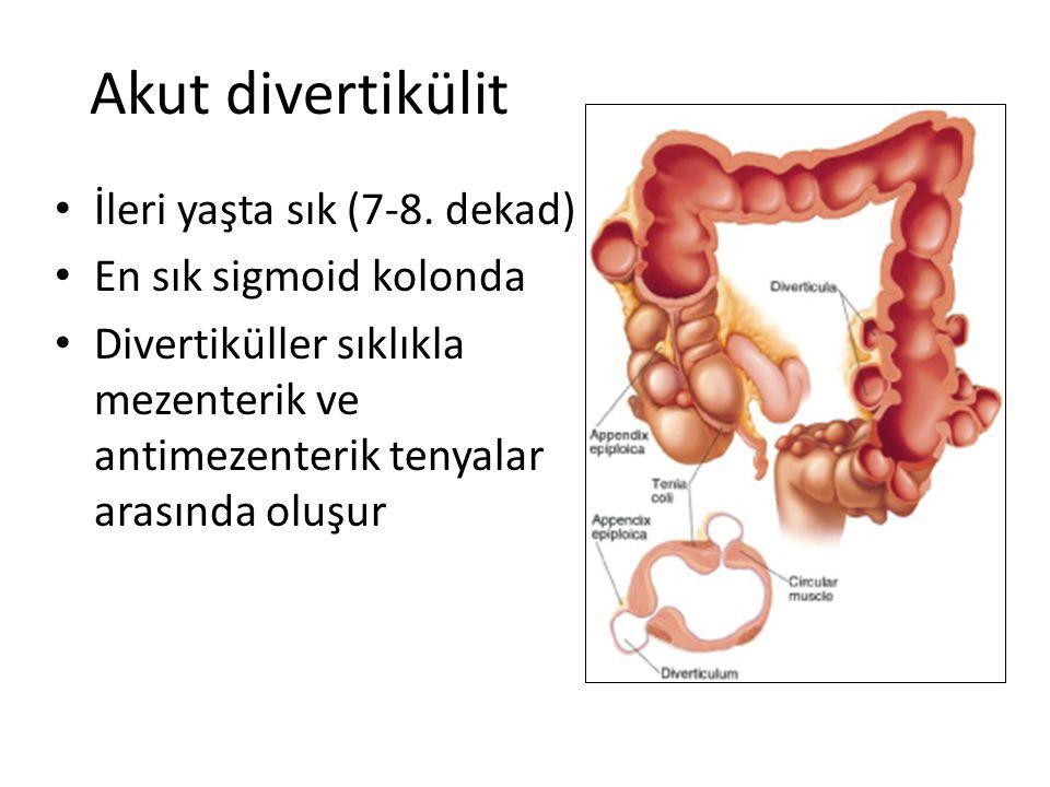 Akut divertikülit İleri yaşta sık (7-8. dekad) En sık sigmoid kolonda