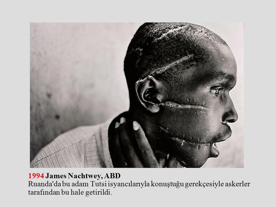1994 James Nachtwey, ABD Ruanda da bu adam Tutsi isyancılarıyla konuştuğu gerekçesiyle askerler tarafından bu hale getirildi.