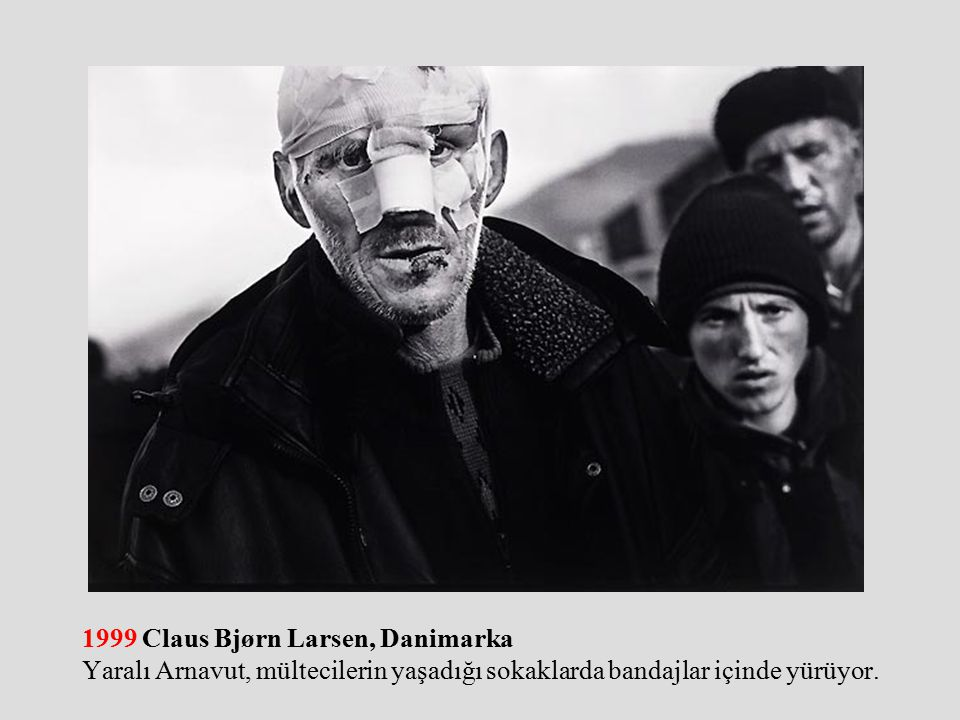 1999 Claus Bjørn Larsen, Danimarka Yaralı Arnavut, mültecilerin yaşadığı sokaklarda bandajlar içinde yürüyor.