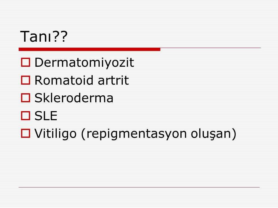 Tanı Dermatomiyozit Romatoid artrit Skleroderma SLE