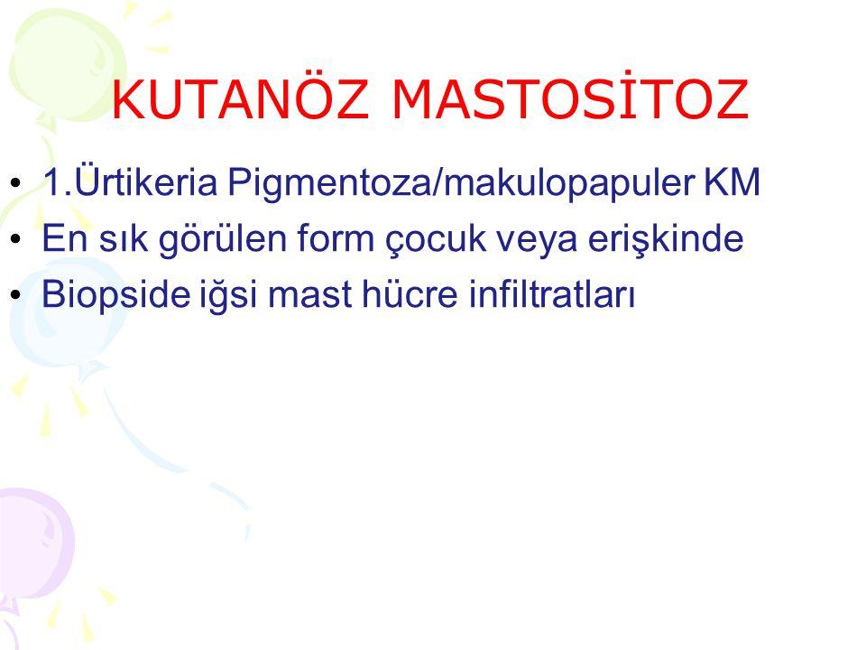 KUTANÖZ MASTOSİTOZ 1.Ürtikeria Pigmentoza/makulopapuler KM