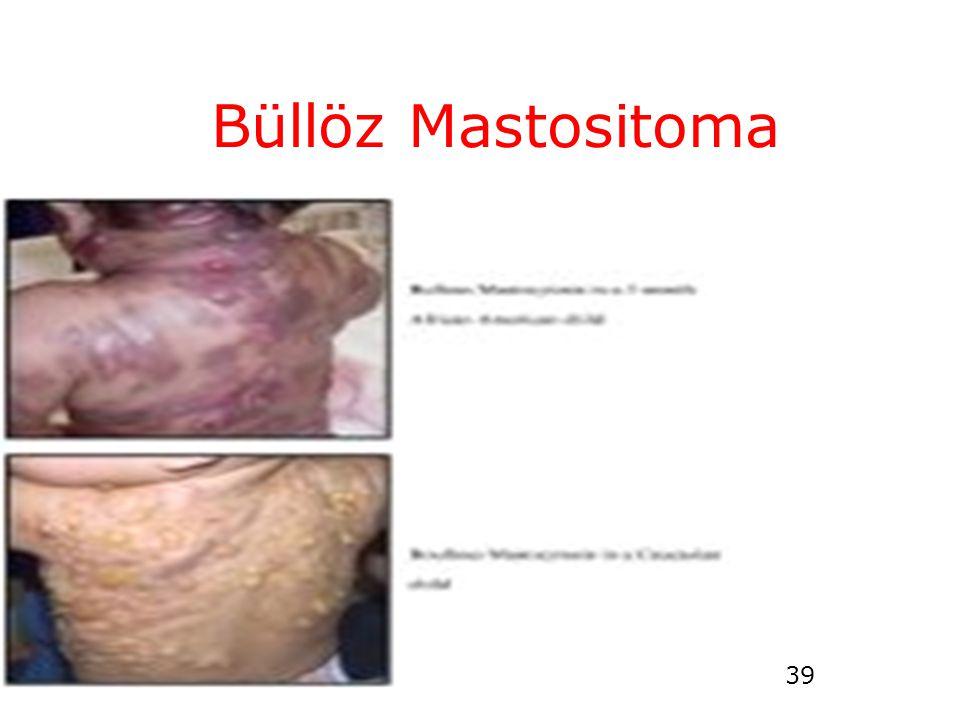 Büllöz Mastositoma
