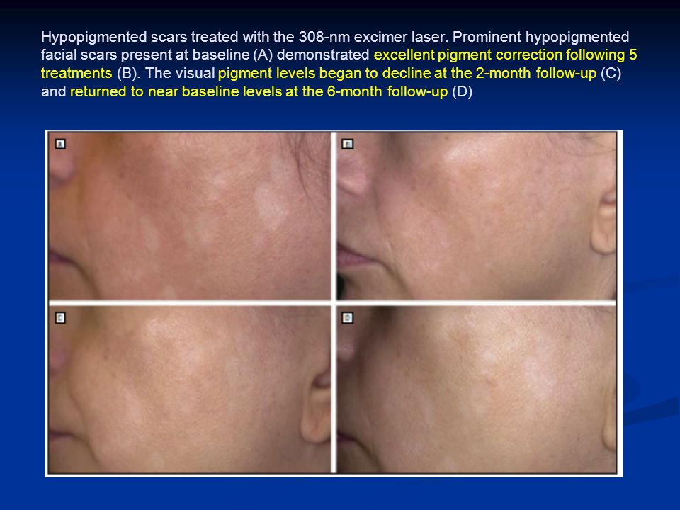 Hypopigmented scars treated with the 308-nm excimer laser
