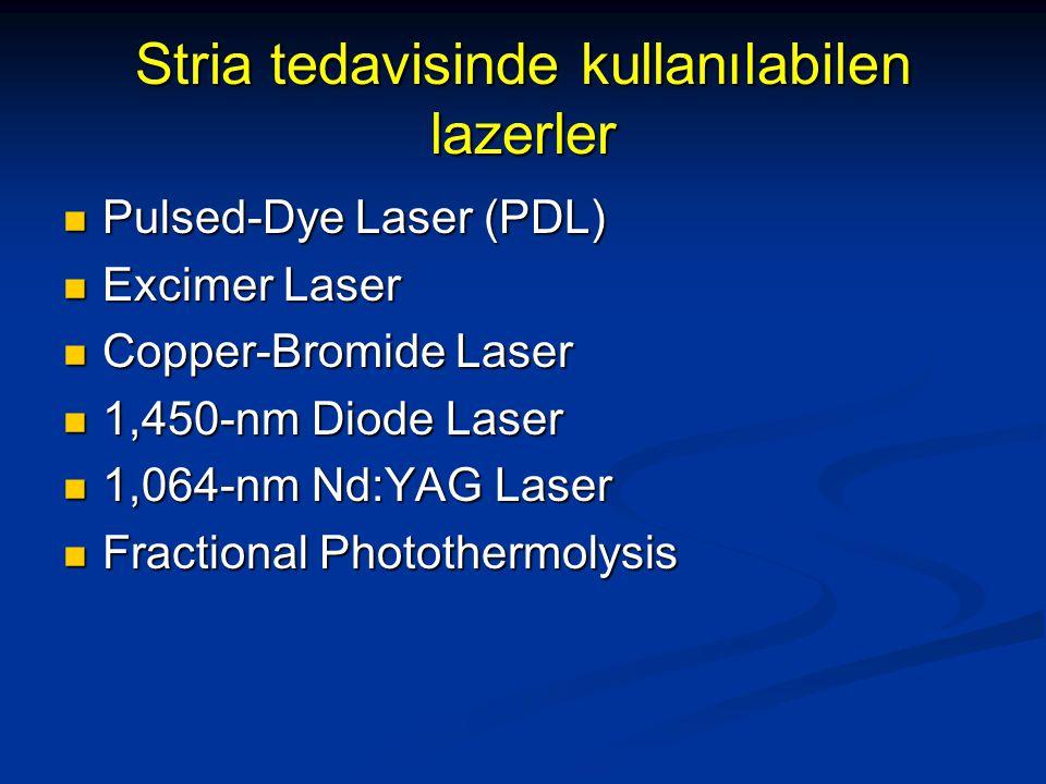 Stria tedavisinde kullanılabilen lazerler