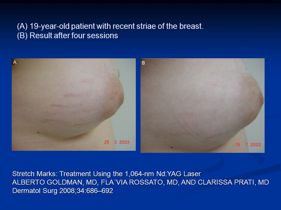 (A) 19-year-old patient with recent striae of the breast
