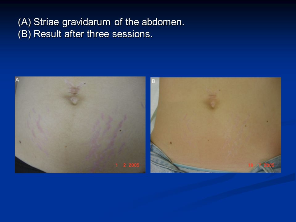 (A) Striae gravidarum of the abdomen. (B) Result after three sessions.