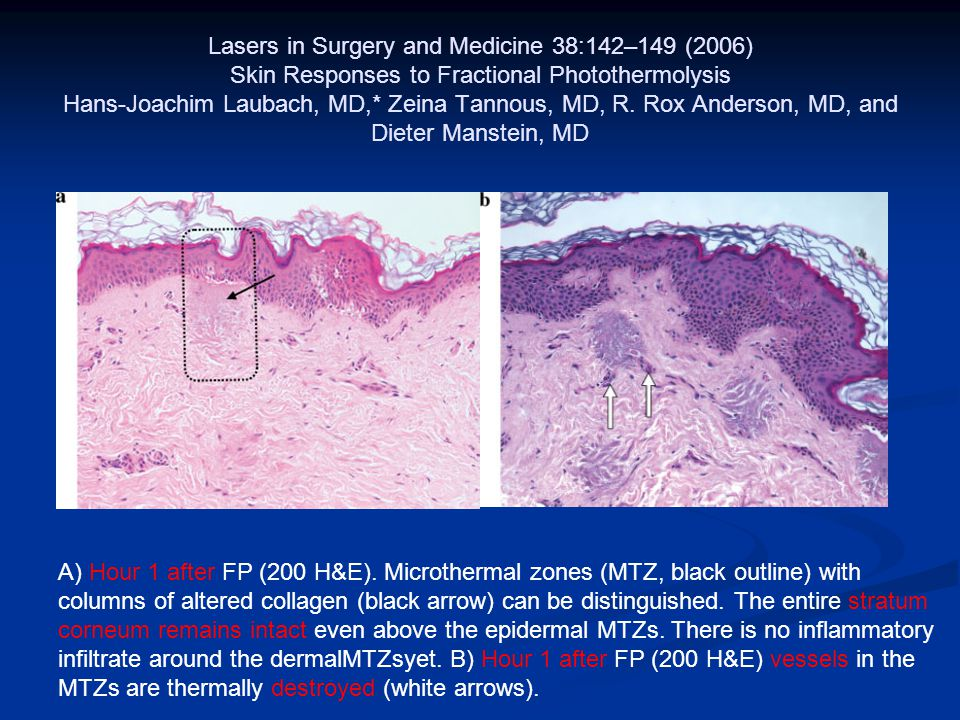 Lasers in Surgery and Medicine 38:142–149 (2006) Skin Responses to Fractional Photothermolysis Hans-Joachim Laubach, MD,* Zeina Tannous, MD, R. Rox Anderson, MD, and Dieter Manstein, MD
